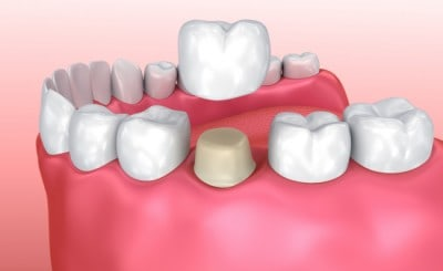 Getting dental crowns can greatly improve the look and function of a weak tooth.
