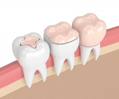 There are various types of dental crowns you can get at renew Institute in Louisville, KY.