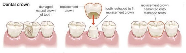Dental crowns can be placed in as little as 5 steps at renew Institute in Louisville, KY.