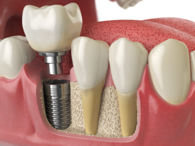 Once the dental equipment is in place, they provide a strong foundation for single or full arch prosthestics.