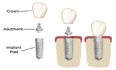 The doctors at renew Institute in Louisville, KY know how to precisely place the dental post for optimal function.