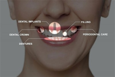 A full mouth reconstruction is a dental procedure that is made up of several smaller procedures.