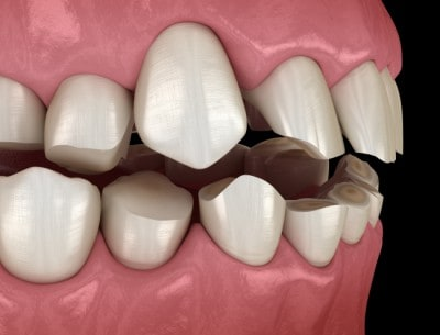 A full mouth reconstruction can fix several dental problems.