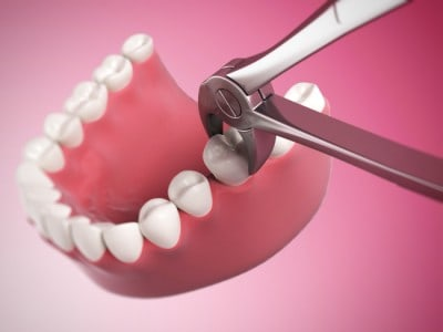 A tooth extraction is sometimes necessary to preserve the health of your mouth.
