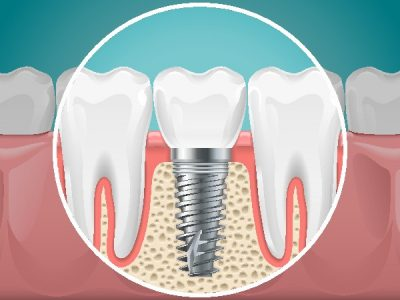 There are several types of dental implants your Louisville, KY prosthodontist can choose from.