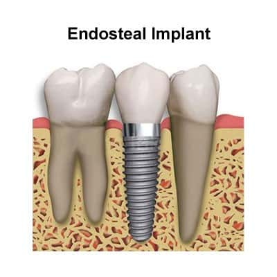 There are two main types of dental implants in Louisville, KY, one being an Endosteal Implant.