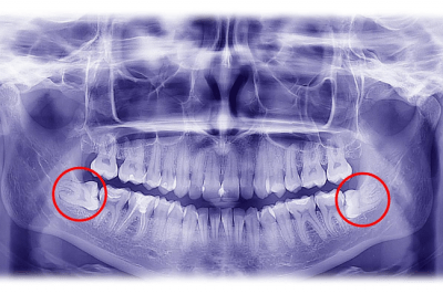 Wisdom teeth removal should be done by an oral surgeon in Louisville, KY.