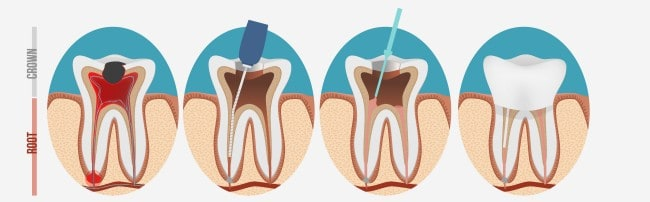 If you have a root canal, your dentist may refer you to an oral surgeon in Louisville, KY.
