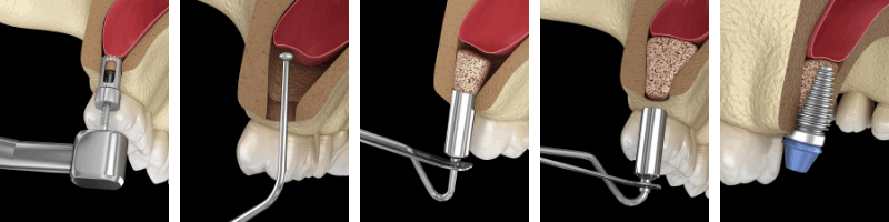A sinus augmentation procedure in Louisville, KY can be broken into these 5 steps.