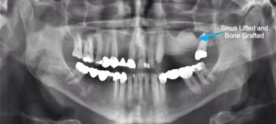 After having a sinus augmentation at our Louisville, KY oral surgery office, it can take up to 6 months to heal.